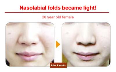 Nasolabial fold facial